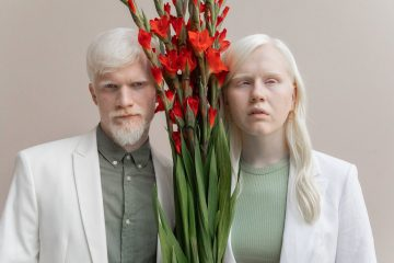 serious albino couple with bouquet of flowers